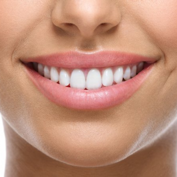 A Bright Smile for the New Year Is Possible in Schertz, TX